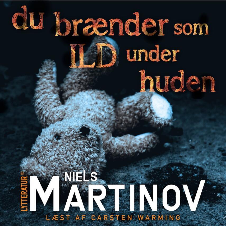 Niels Martinov: Du brænder som ild under huden