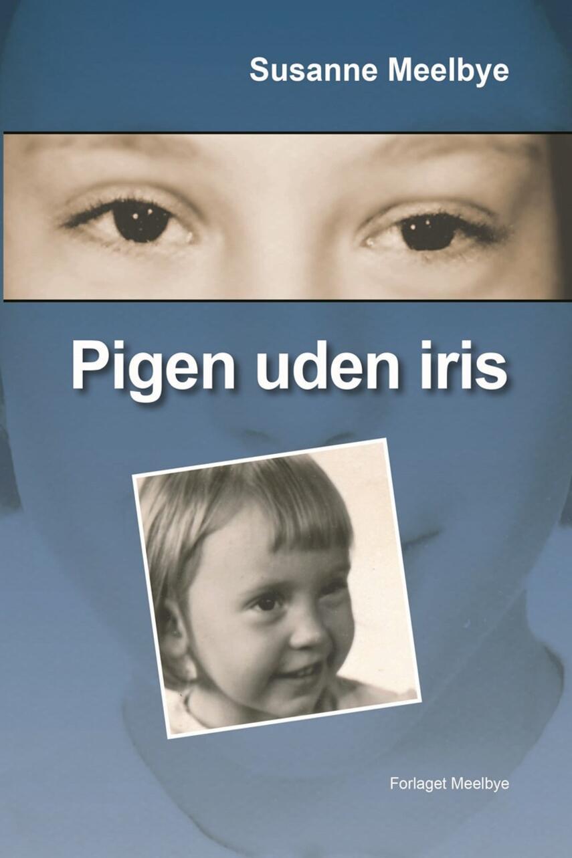 Susanne Meelbye: Pigen uden iris