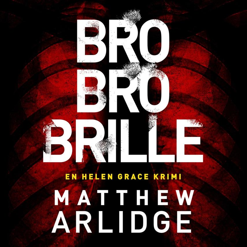 Matthew Arlidge: Bro bro brille